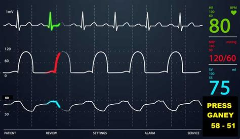 Brand New Vital Sign Added to Monitors and Electronic
