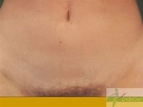 Better cosmetical results Gasless Lift-laparoscopy